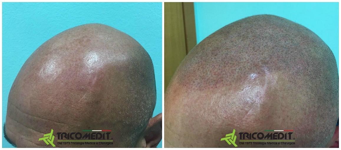 Tricopigmentazione: prima e dopo 01