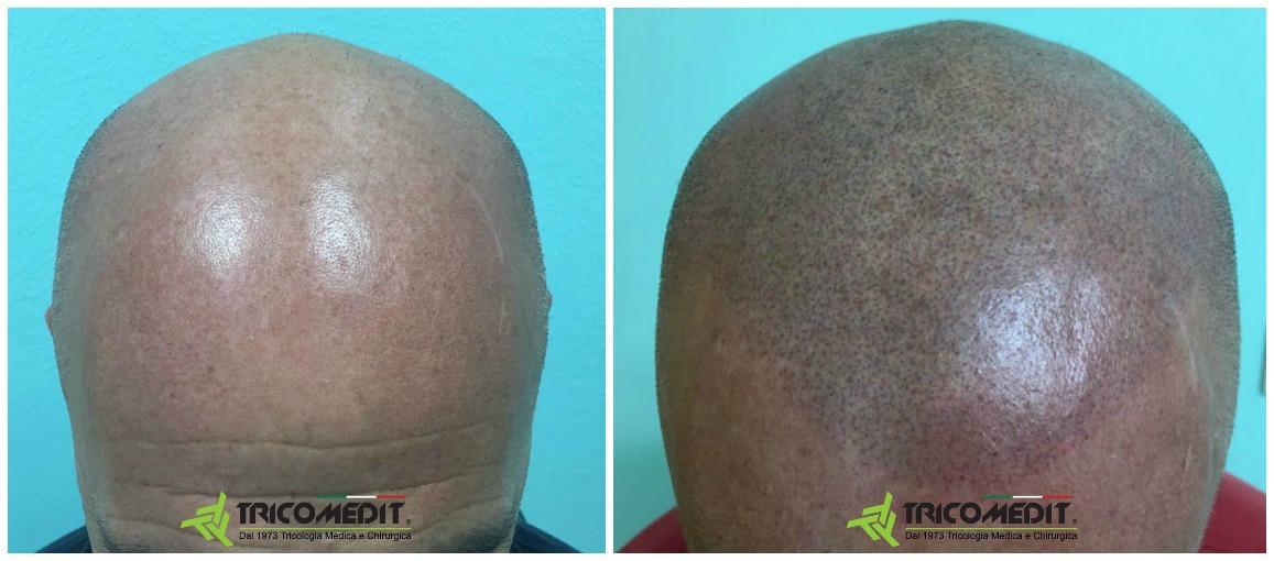 Tricopigmentazione: prima e dopo 02