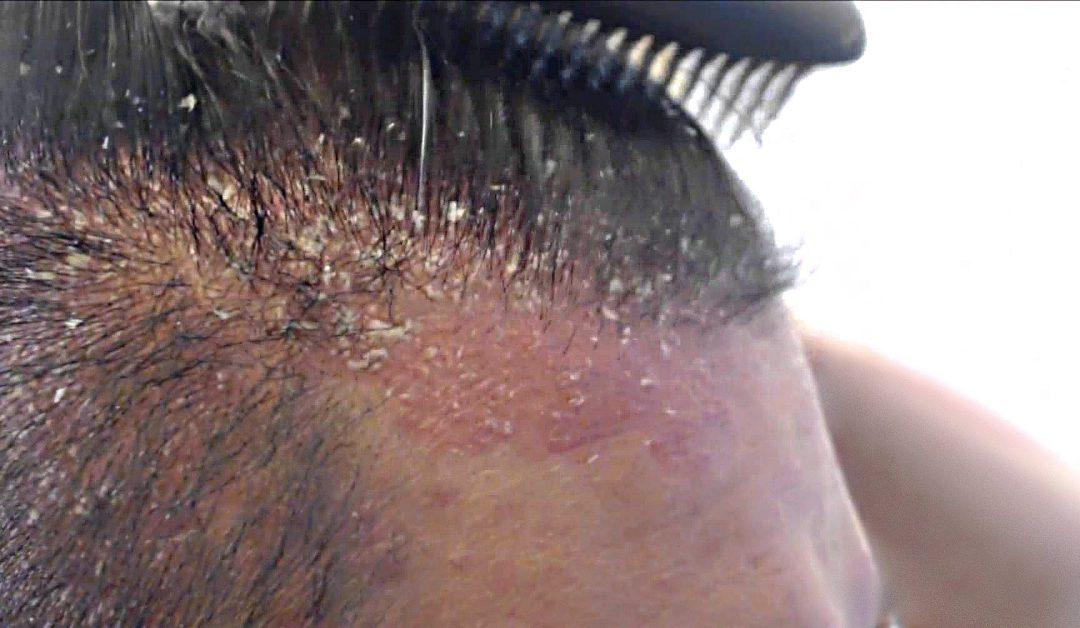 Come curare la Dermatite Seborroica