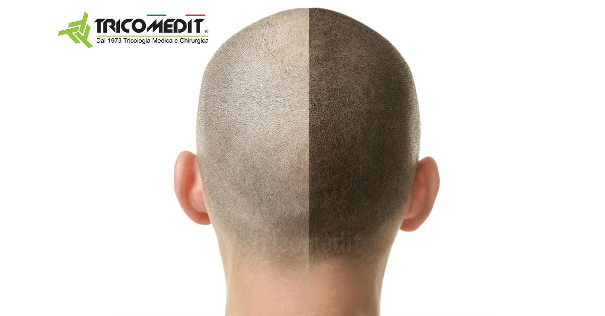 Tricopigmentazione-pro-e-contro-