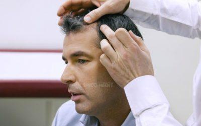 Cure anticaduta per capelli