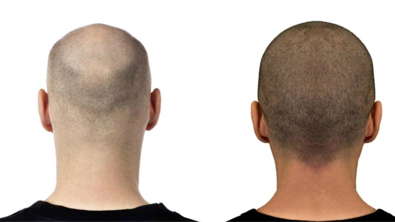 Tricopigmentazione Tricomedit
