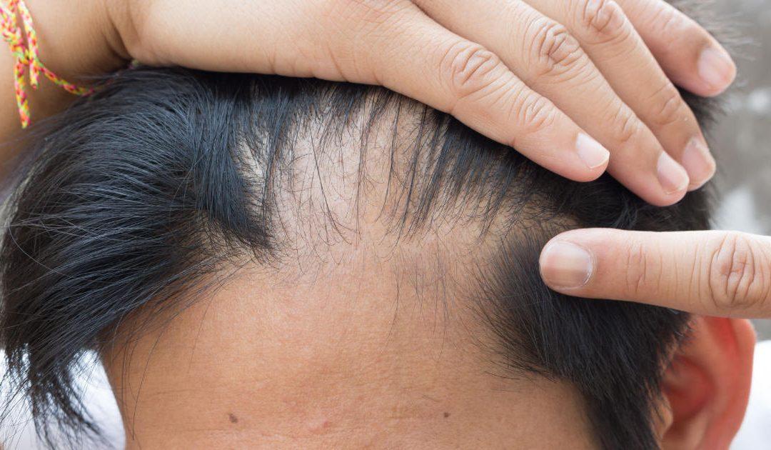 Sintomi Alopecia androgenetica